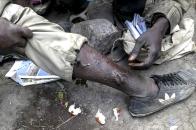 Maiga, maliense de 19 años cura las heridas de un compañero tras un intento de salto frustrado. Monte Gurugu.