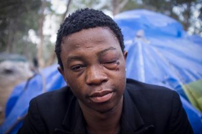 Desde el monte Gurugu, Sami asegura que fue la policia española quien le golpeo en la cara. Despues de los golpes fue arrestado y devuleto a Marruecos.